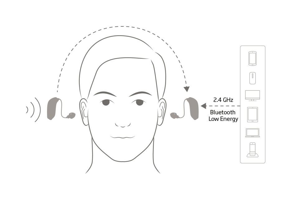 cross-bicross perte auditive unilatérale